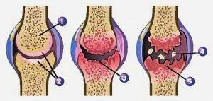 bolecine v kolenu pri pocepu, vzrok artroza